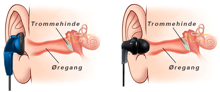 To typer af headset: In-ear headset og earbuds